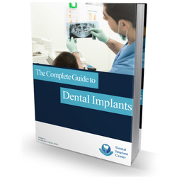 complete dental implant cost guide